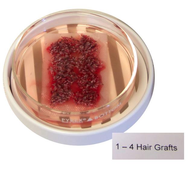 1-4-hair-grafts