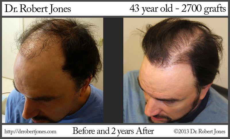 hair-plug_after-image