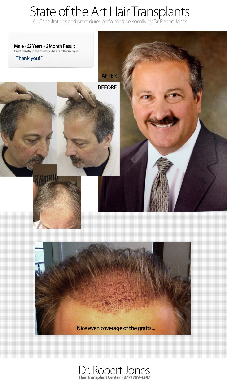 2014-9-17-dr-robert-jones-62yo-male-6-month-post-o-img-1
