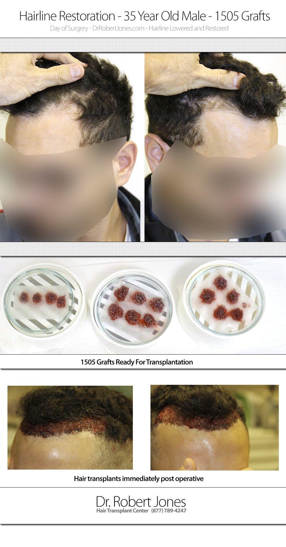2014-10-22-dr-jones-1505-35-yo-hairline-restoratio-img-1