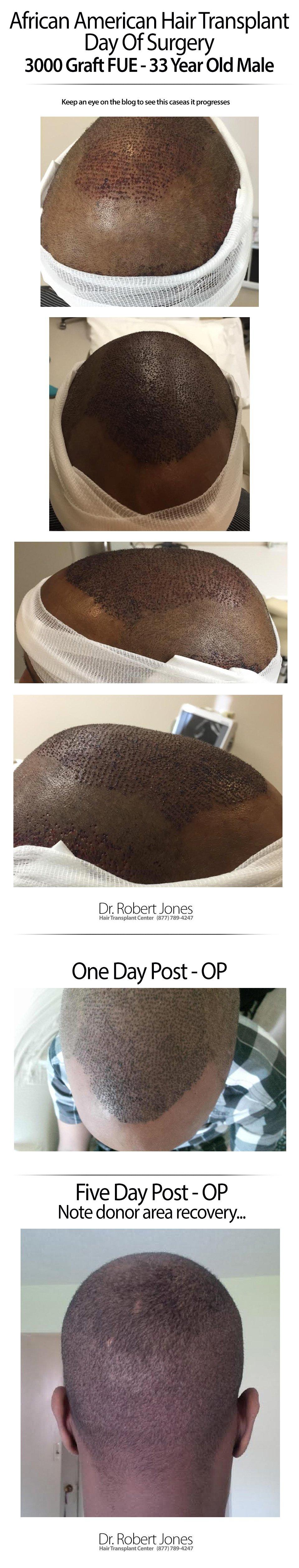 dr-jones-african-american-3000-graft-FUE-img-1