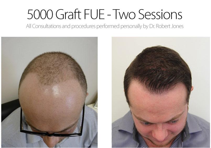 Great FUE Case – 5000 Graft FUE