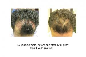 1200-grafts-strip-surgery-1-yr-post-male-35-30s