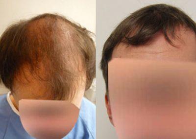 3000 Graft FUE Hair Transplant