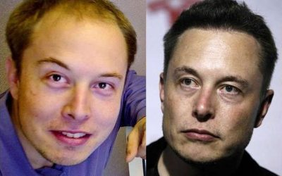 Elon Musk's Hair Transplant