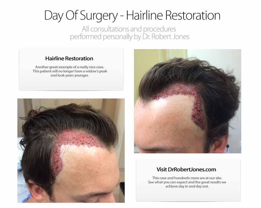 2500 Graft Hairline Restoration