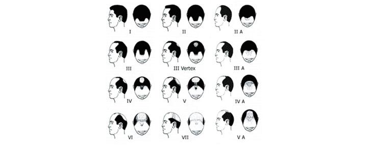 Types-of-hair-loss-in-Men